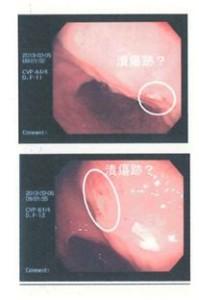 akemi-stomach1